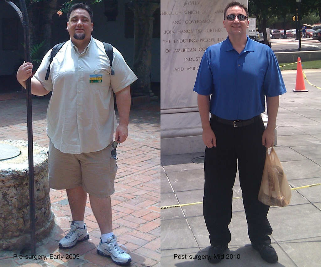 weight loss before and after photos